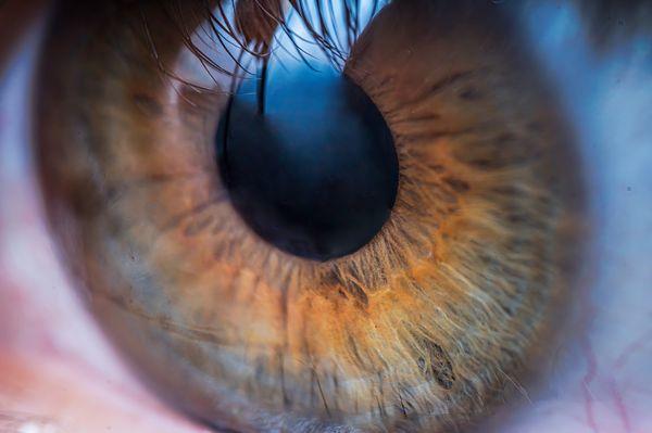 A pupilla jelzései sosem tévednek Kitágult pupilla
