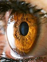 22 év: egyre élesebb látás egyre jobb lézerekkel
