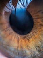 Ablak a szemre, avagy mindent a pupillatágításról