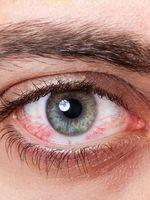 """Vörös jelzés - Nagy a baj, ha """"bevérzik"""" a szeme?"""