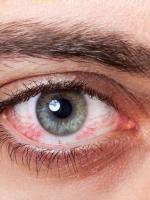 Allergiát okozhat a kontaktlencse és kontaktlencse-problémát az allergia
