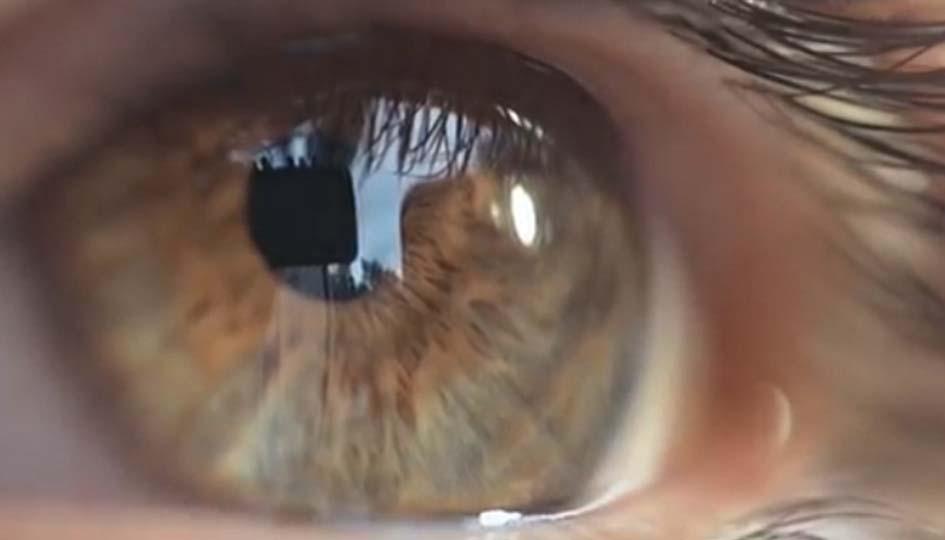 szemészeti központ sas